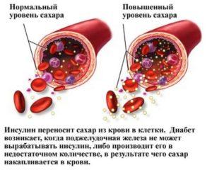 гипергликемия терапия