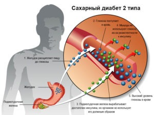 признаки сахарного диабета второго типа