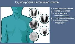исследование щитовидной железы сцинтиграфия