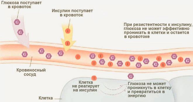 анализ на гормон инсулин