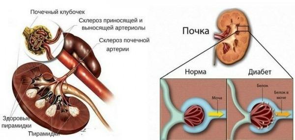 диабетическая нефропатия