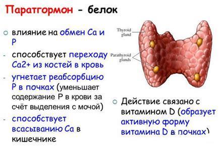 формы гиперпаратиреоза