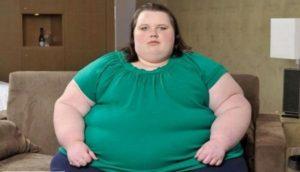 ожирение 4 степени лечение