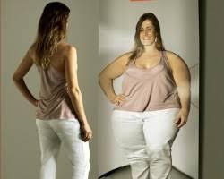что означает ожирение