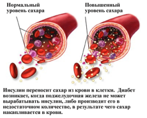 резкие скачки сахара в крови