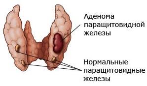 рак паращитовидных желез