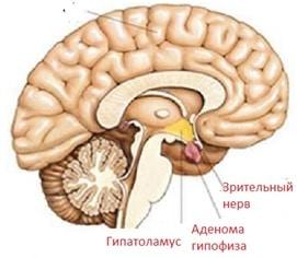 гормональная аденома гипофиза