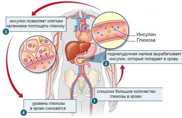 высокий уровень инсулина в крови
