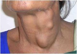 многоузловой зоб щитовидной железы