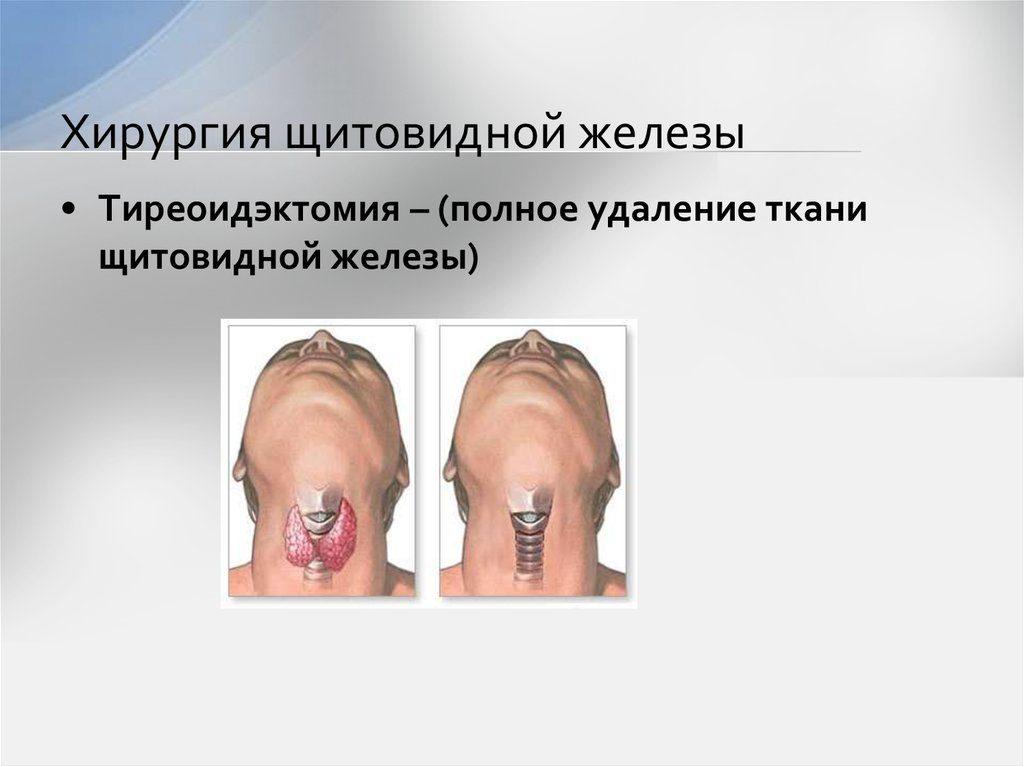 операция по удалению щитовидной железы