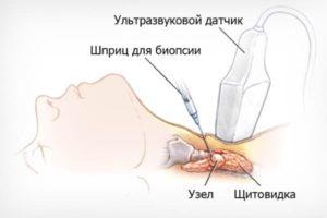 лечение многоузлового зоба