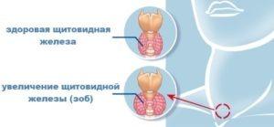 как лечить зоб щитовидной железы