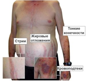 болезнь Иценко-Кушинга
