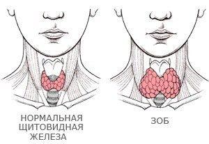 народное лечение зоба щитовидной железы