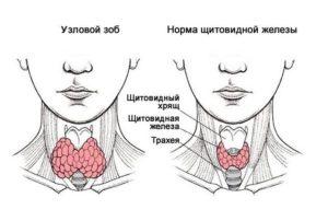лечение узлового зоба народными средствами