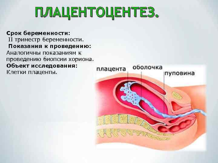 плацентоцентез