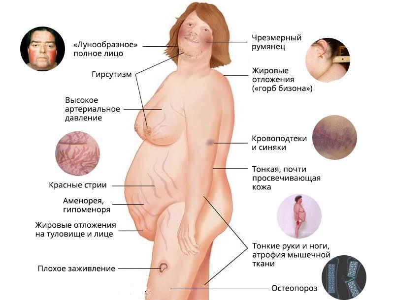 лечение болезни Иценко-Кушинга
