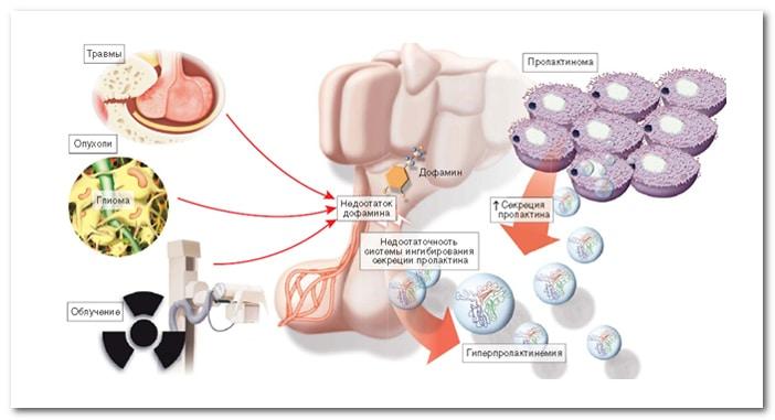 синдром гиперпролактинемии