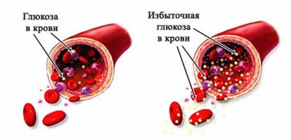 анализ крови на глюкозу при беременности