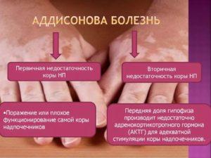 болезнь Аддисона симптомы