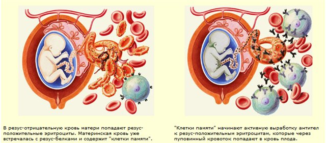 анализ крови на антитела при беременности