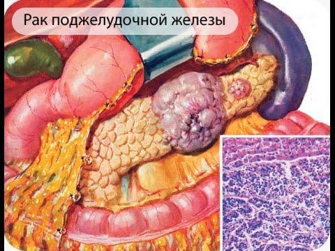 диагностика рака поджелудочной железы
