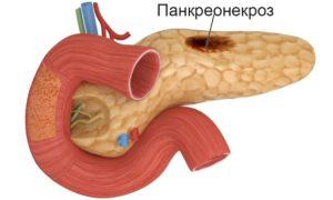 панкреонекроз лечение