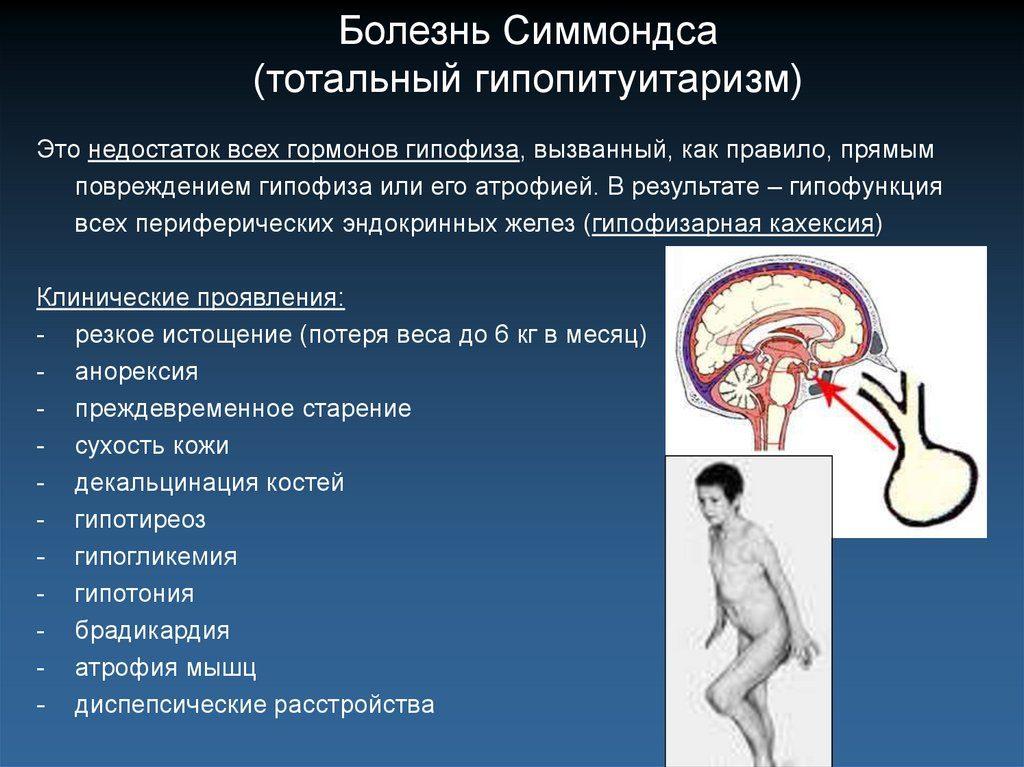 болезнь Симмондса