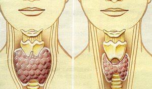 дисфункция щитовидной железы симптомы