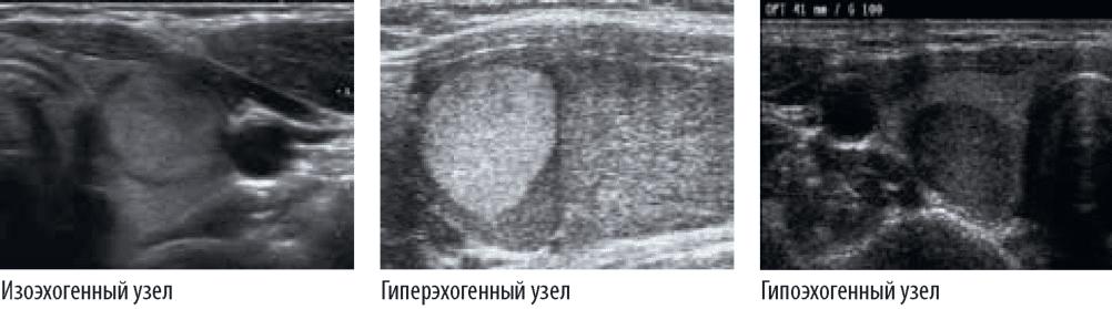 эхогенность щитовидной железы