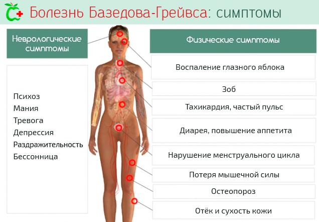 Базедова болезнь: причины развития