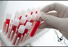 В большинстве клиник – анализ бесплатный и обязательный. Проходит в три этапа для получения более точного результата.