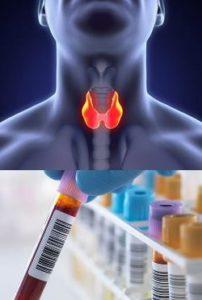 кальцитонин анализ крови