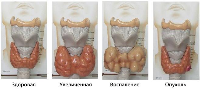 При диффузном воспалении назначаются стероидные гормоны (например, Преднизолон), дозировка которых постепенно снижается.