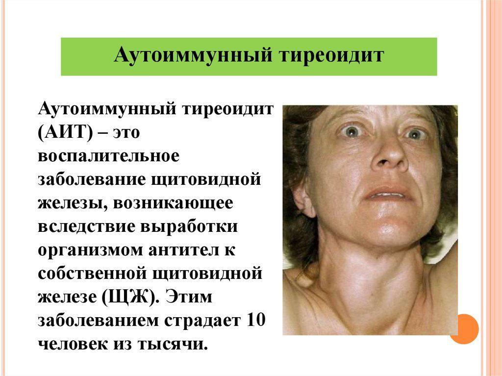 как лечить аутоиммунный тиреоидит