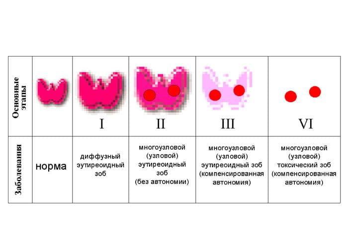 степени зоба щитовидной железы