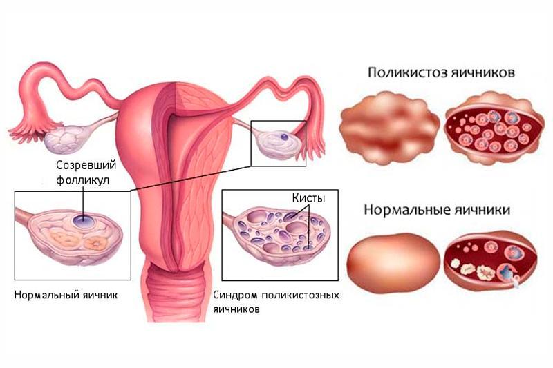 синдром поликистозных яичников лечение