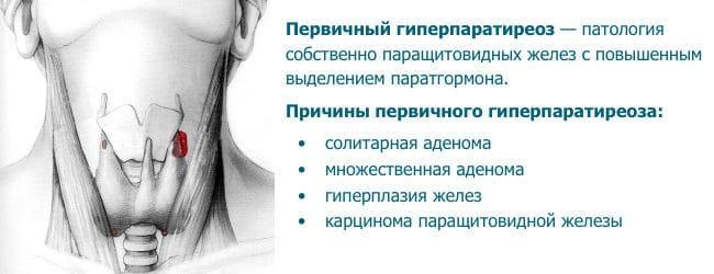 лечение гиперпаратиреоза