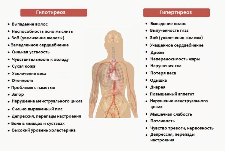 причины возникновения зоба щитовидной железы
