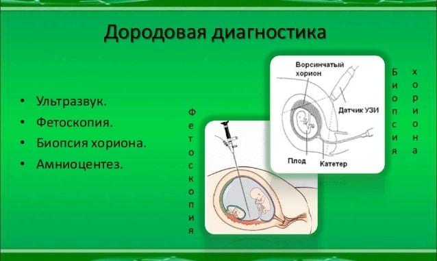 фетоскопия
