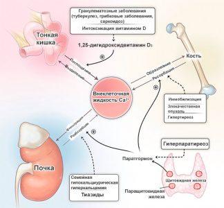 вторичный гиперпаратиреоз