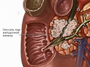 синдром Вернера-Моррисона