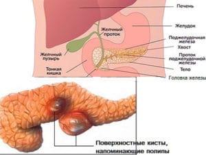 полипы в поджелудочной железе