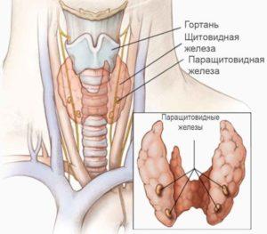 киста паращитовидной железы