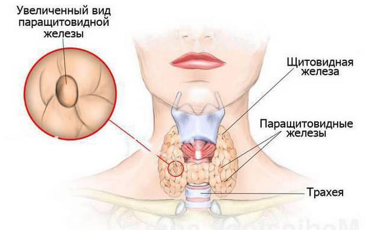 паращитовидная железа киста