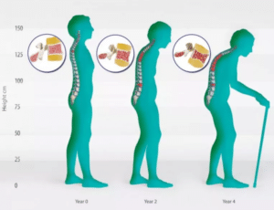 остеопороз при менопаузе