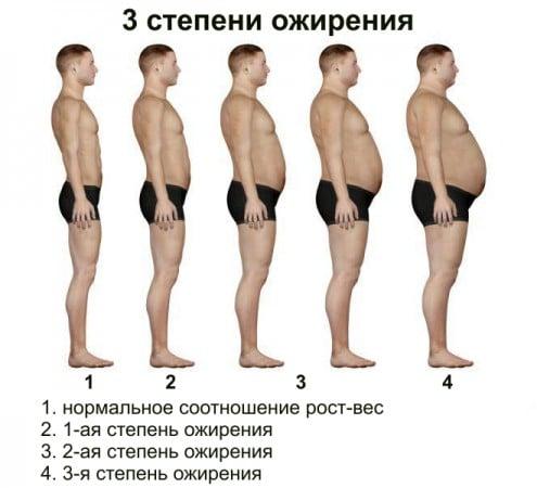 степени ожирения у мужчин