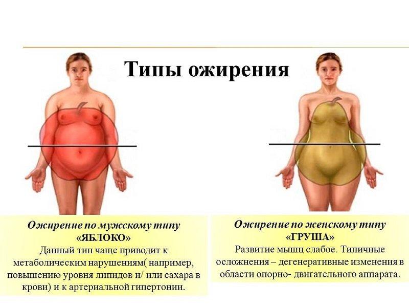андроидный и гиноидный типы ожирения