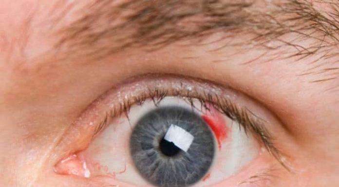 СД и ретинопатия