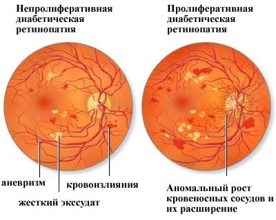 так выглядит диабетическая ретинопатия